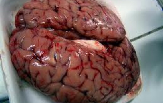 Cerebro de vaca